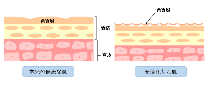 健康な肌と菲薄化を比較した断面図の画像