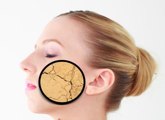 乾燥肌の顔の画像