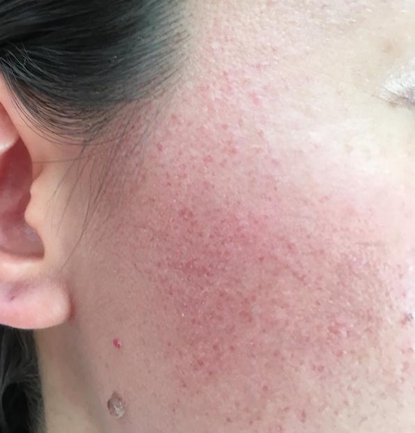 敏感肌の赤ら顔の画像