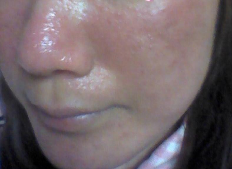 酒さ様皮膚炎の女性の画像