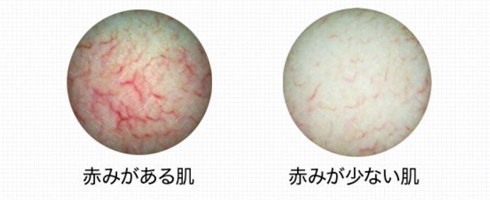 肌の赤みが軽減している画像
