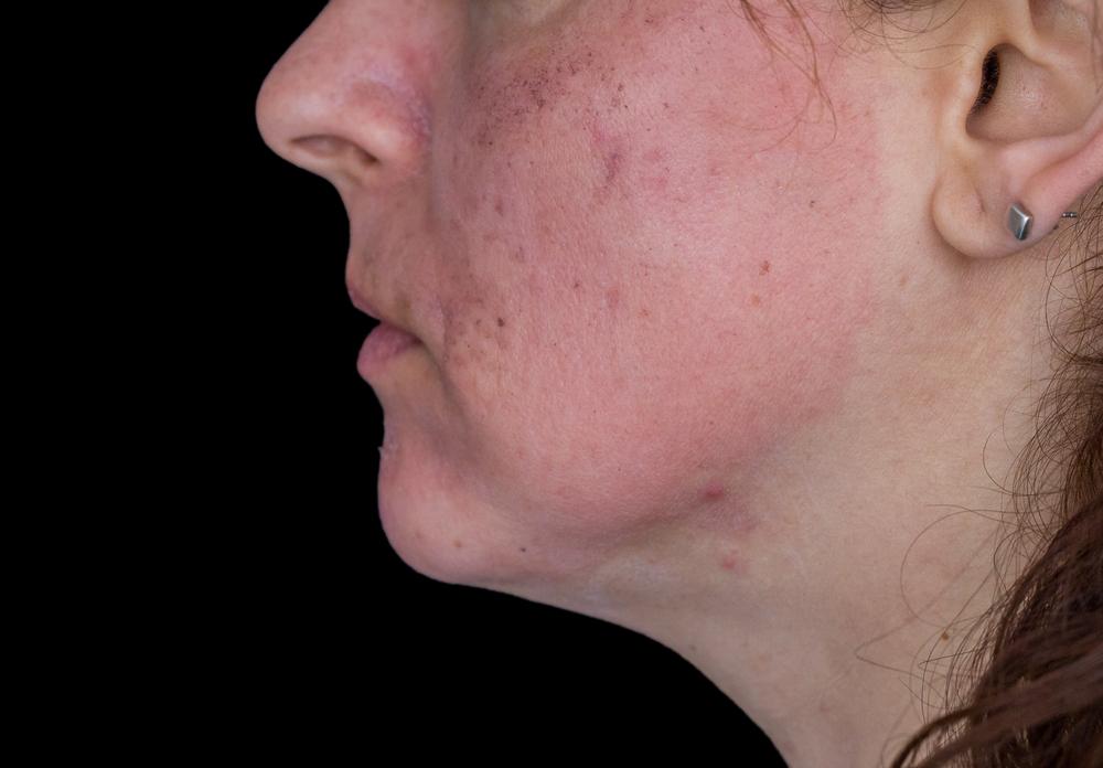 頬が赤い女性の画像