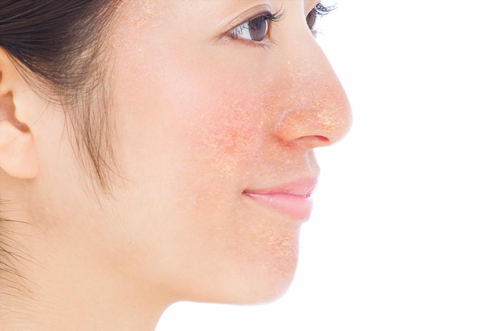 脂漏性皮膚炎のイメージ画像