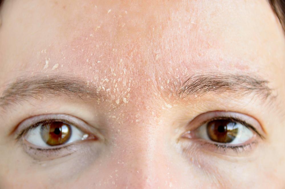 乾燥して皮が剥けている女性の顔の画像