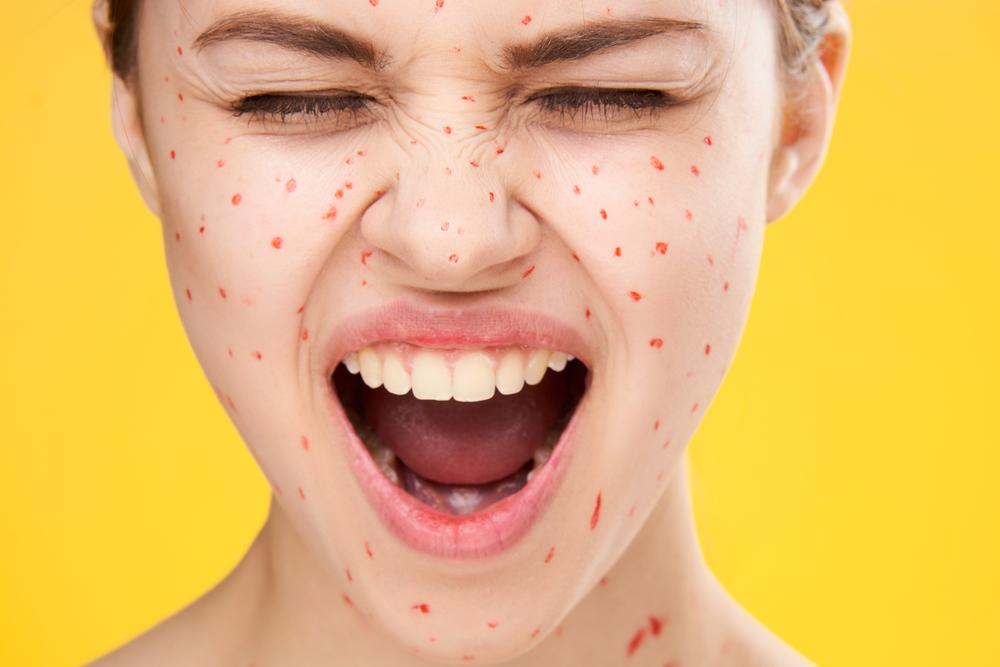 顔に湿疹ができている女性の画像