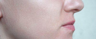 顔の皮膚が薄い肌の画像