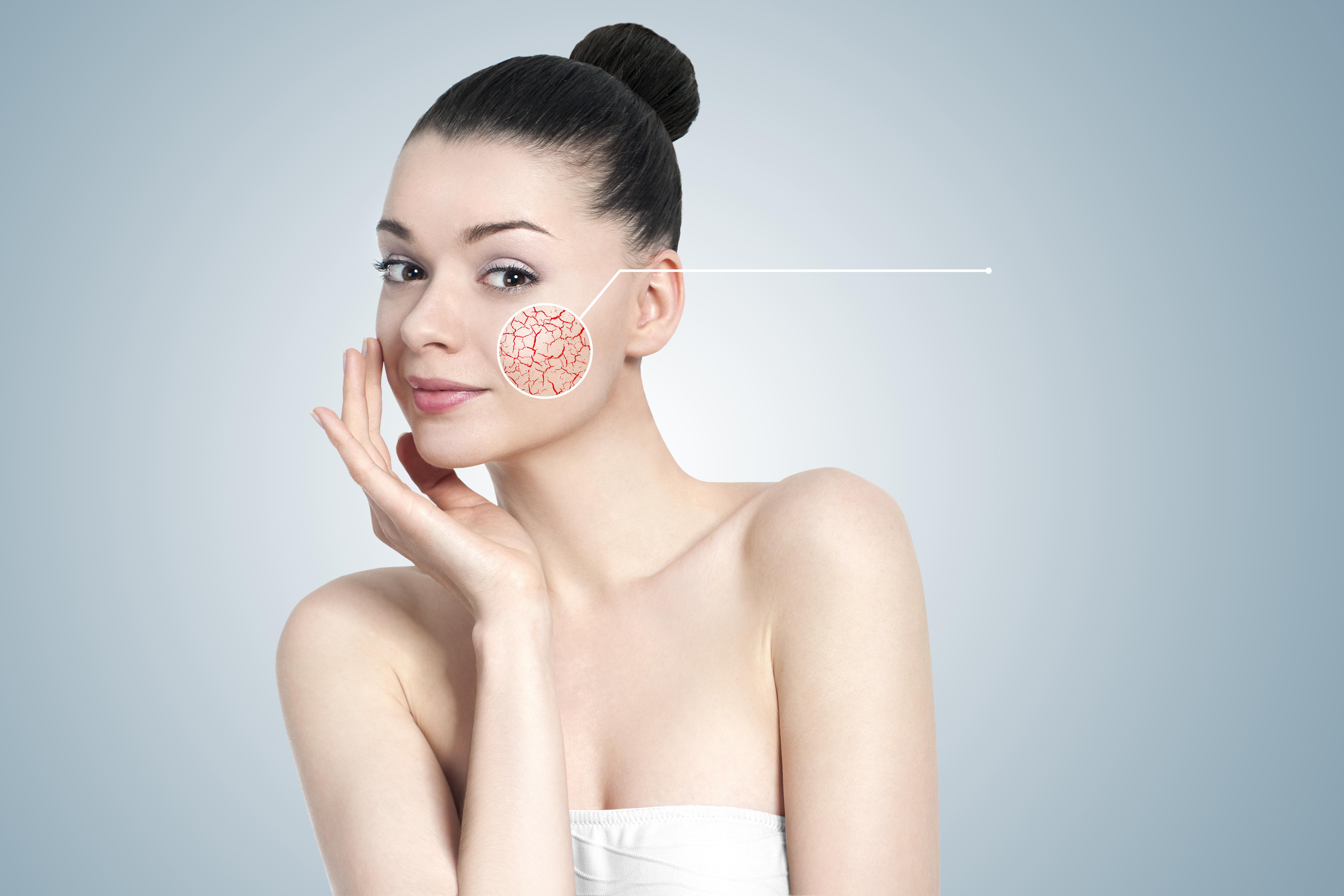 顔に毛細血管が透けている女性の画像
