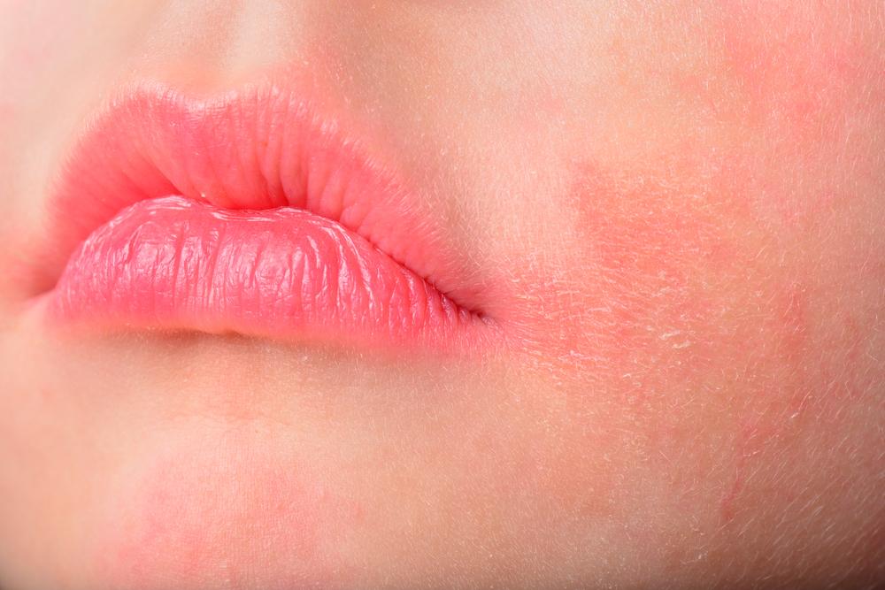 顔が赤い女性のアップ画像