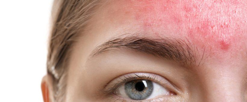 ニキビの赤ら顔になっている女性の画像
