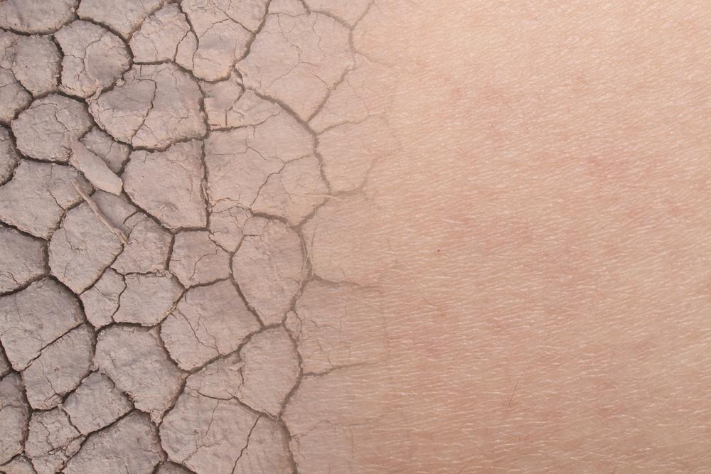 乾燥している肌が改善されていくイメージ画像
